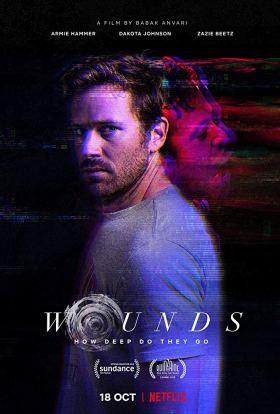 Wounds.jpg